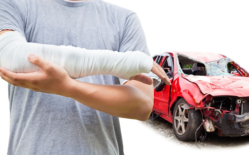 car accident injuries to arms and legs